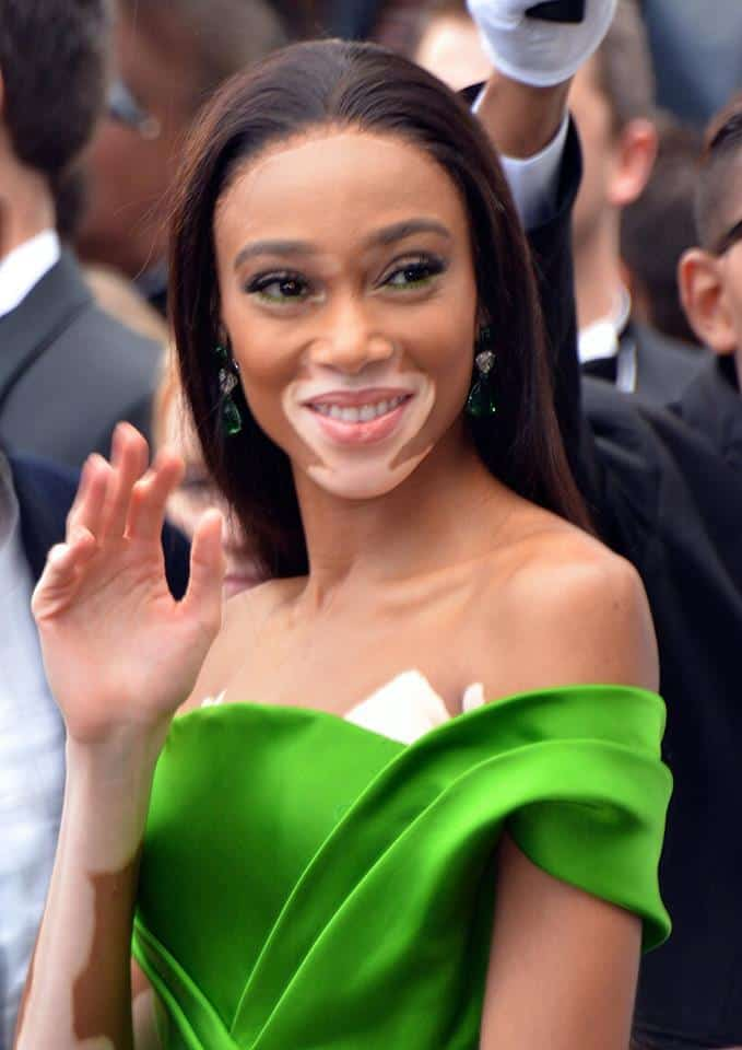Winnie Harlow uses her platform to inspire those with her skin condition and women of color