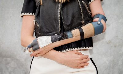 Sophie Oliveira Barata wearing a black jacket and a white skirt and she has an alternative limb on one of her arms with lots of black tape around it and a white cast.